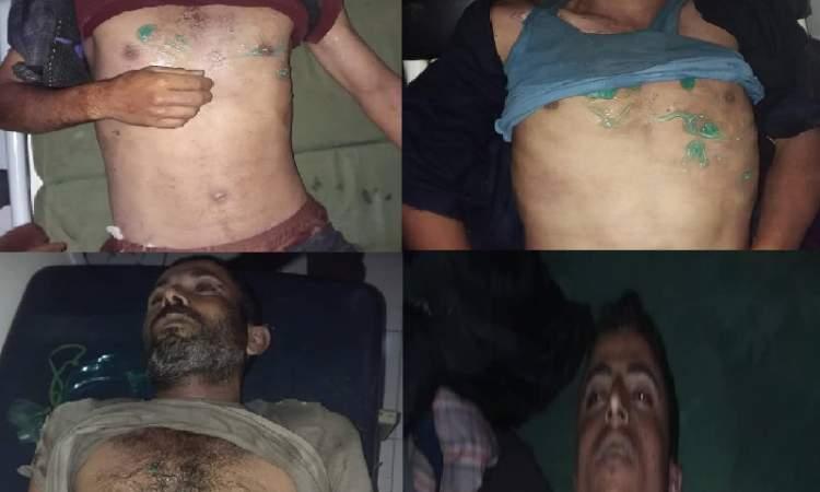 يالصورة..صاعقة رعدية تؤدي الى وفاة وإصابة 8  يمنيين